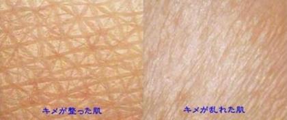 お肌改善パック最強!ドイツ製品アスリート、有名人も使用。スチーマー&オゾンつき。毛穴レス、ツルツル、キメ、はり、即実感