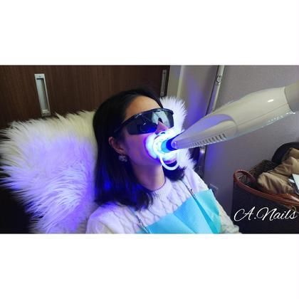 歯のセルフホワイトニング  トライアル15分