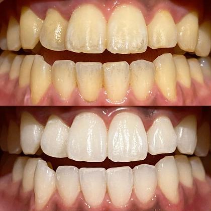 【歯のトーンチェック】歯科衛生士が歯のトーンチェックをします❣️ホワイトニング🦷✨