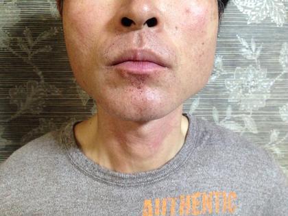 たった1日で、こんなにスッキリしました! 1回目なので、少し痛みはありましたが それよりもヒゲが無くなったことに対する 喜びの方が大きいようです。 KAISEIDO所属・鈴木直子のフォト
