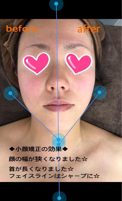 【美容矯正】30分 小顔矯正☆1回で驚きの変化!!