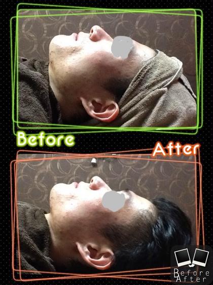 【新規】Face筋膜マッサージ(お顔、首筋、頭皮マッサージ付き)
