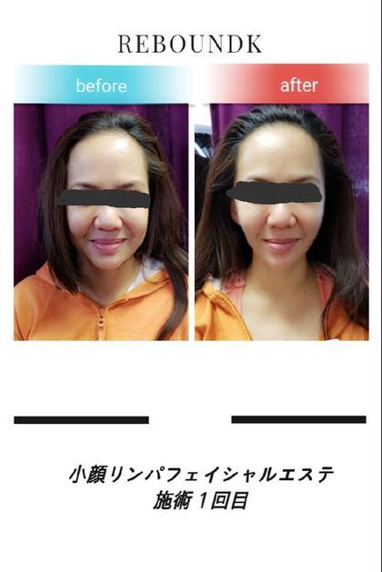 骨格・整顔美人エステ3ヶ月フリーパス‼️