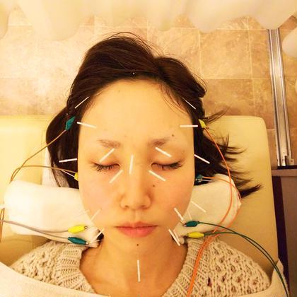 【1日1人限定✨】💓胸鎖乳突筋にもアプローチ✨美容鍼(首・顔・頭)+小顔矯正☆60分9,900円→5,500円