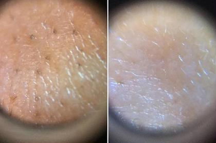 毛穴洗浄機を使用するとこんなにお肌が見ちがえります(#^^#)