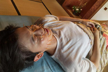 鍼で内側から肌質改善!