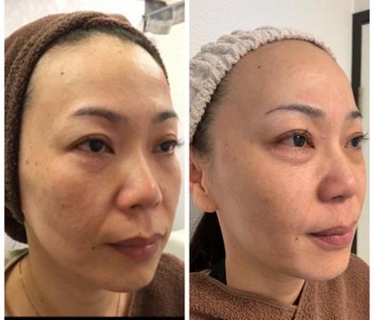 たるみ改善コース 美容鍼2回の3ヶ月後