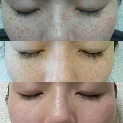 2週間後→1ヶ月後ベルタ基礎化粧品の力