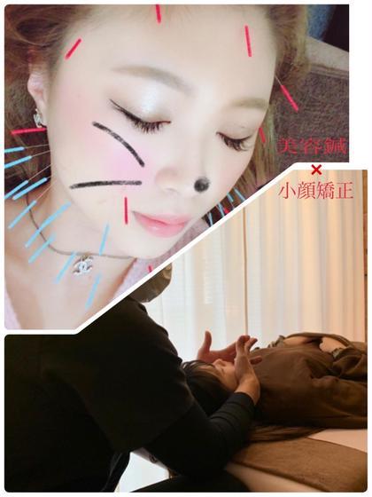 🌻最強小顔メニュー🌻美容鍼+小顔矯正+リンパマッサージ