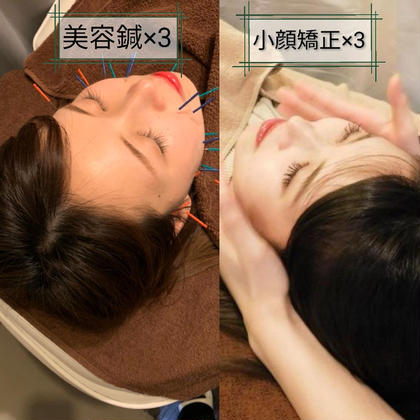 【minimo限定】美容鍼+小顔矯正 3回セット💃
