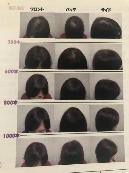 髪の毛増毛!エアエクでボリュームアップ!初回お試し300本 通常300本15000円+TAXが今だけ税込9720円!