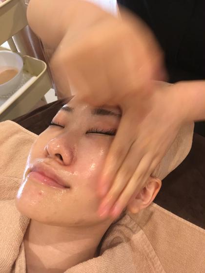 毛穴&ニキビ専科フェイシャル→皮脂除去専用エッセンス使用