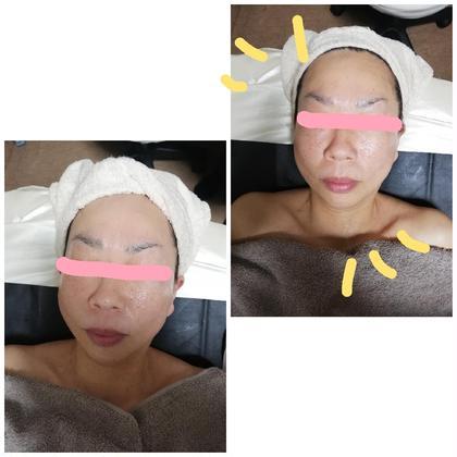 特別価格★顔筋美肌リンパマッサージコース