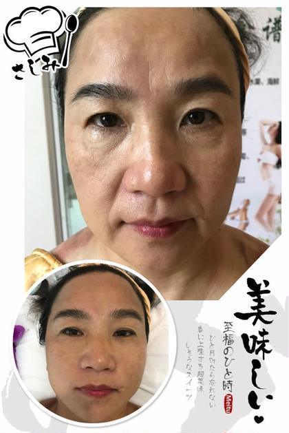 小顔美肌(洗顔、角質を除く、マッサージ、小顔と首ヒアルロン酸を導入)リピーターは6980円5回コース25000円