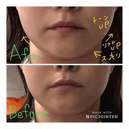 2重顎でお悩みの患者様に 美容鍼で電気を流した1回のみの施術のお写真です。 2回目以降も楽しみですね(^ ^) STYLE JAPAN整骨院所属・廣田真輝子のフォト