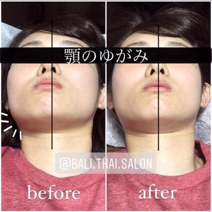 minimo今だけ価格❣️諦めないで❣️あごのお悩み改善💆🏻♀️15分で痛くない顎関節矯正体験❤️小顔矯正追加可