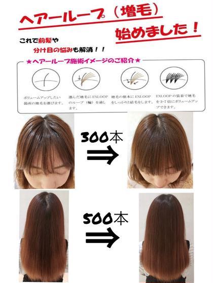 ✨✨ヘアーループ✨✨ 新感覚増毛方 気になる所をなくしましょう 前髪の割れ目!! つむじ周りなど!!