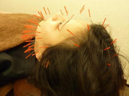 はりパック100+美肌促進コース✨ 鍼灸整骨院いろは所属・O.Seiyaのフォト