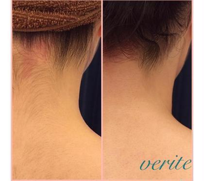 【背中の産毛が気になる方👀】肌悩み別💆♀️選べるシェービング+ドレスラインケア✨薄着になるこの時期、見せたい背中へ