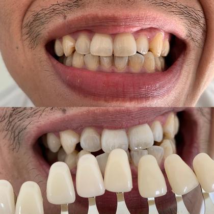 この方は、一切歯の色加工なしでこの明るさに変身😉 ※個人差はあります 217whitening room所属・217ホワイトニングルームのスタイル