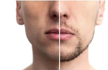 男性 脱毛(口周り、顎下)