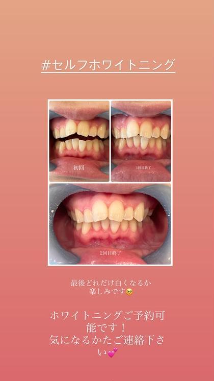 今話題の💡セルフホワイトニング🦷 10分×2回照射(すべてお客様ご自身でして頂く歯のホワイトニングです!)