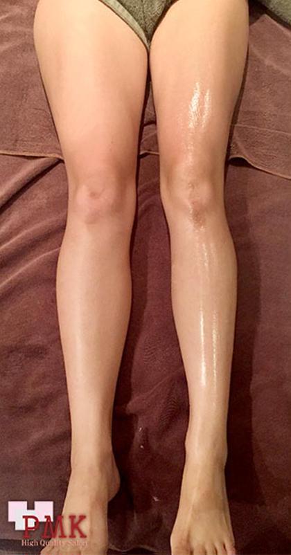 向って左は未対応、右が対応後です。  らむトータルボディケア 鍼灸 骨格矯正所属・花木グリコのフォト