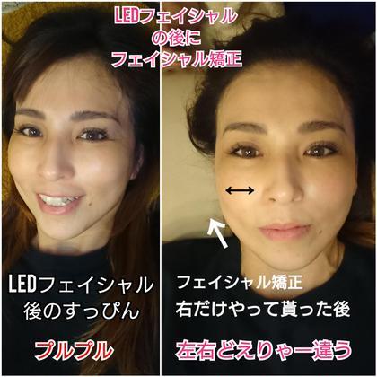頭蓋骨からアプローチ、浮腫みを流しその場で変化実感✨美Dical式小顔矯正✨