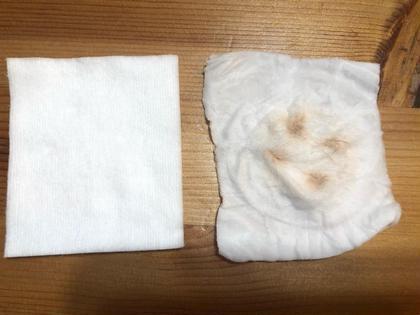 クレンジング後のセルキュア美顔器でこんなに汚れが落ちました!!