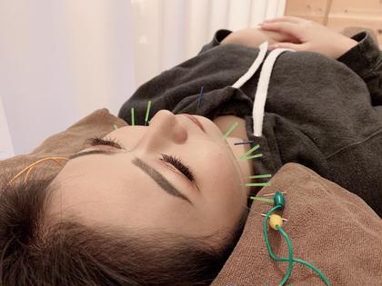 🌸NEW🌸リンパマッサージ➕電気美容鍼⚡️(小顔、歪み矯正)🎉