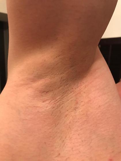 その他 メンズ 脱毛 脇 1回目から3週間経過しています。