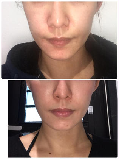 ウルトラリフト🌟最新型美容機器⑦⓪⓪⓪shot❣️(顔、首)&ハイドロピーリング