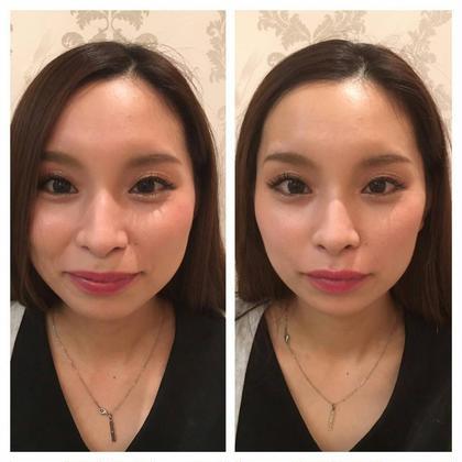 【小顔×ヘッドスパ✨💆♀️】小顔美容鍼×炭酸ヘッドコルギ