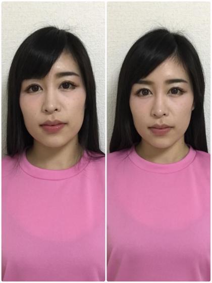 小顔・顎関節コース
