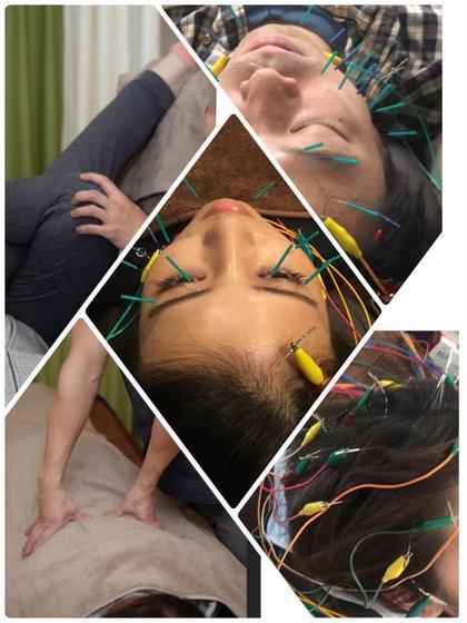 🉐自由に選べる✌️☝️3メニュー💃美容鍼/骨盤矯正/育毛活性低周波美容鍼/🕺など