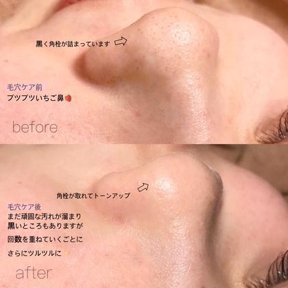 🧡お鼻の黒ずみスッキリ】毛穴ケア ¥2200