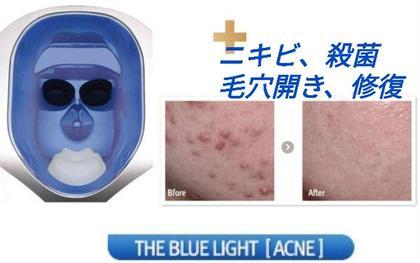 リタイム(美顔器)色別効果→バイオレット照射時間4分 ニキビや皮脂の分泌をよくする光!