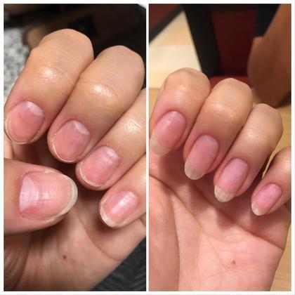 爪育(小爪さん・深爪さん・噛み癖)美爪になりたい方❣️一緒に爪育しましょう✨