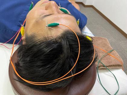 少しの痛みなら大丈夫!リフトアップしたいと言う方に【30分】問診 電気針+鎖骨・手のマッサージ