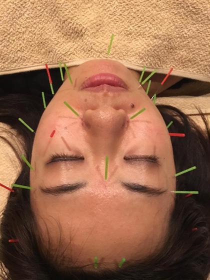 美容鍼灸  スーパー温熱鍼灸整骨院所属・YAMADATETSUYAのスタイル