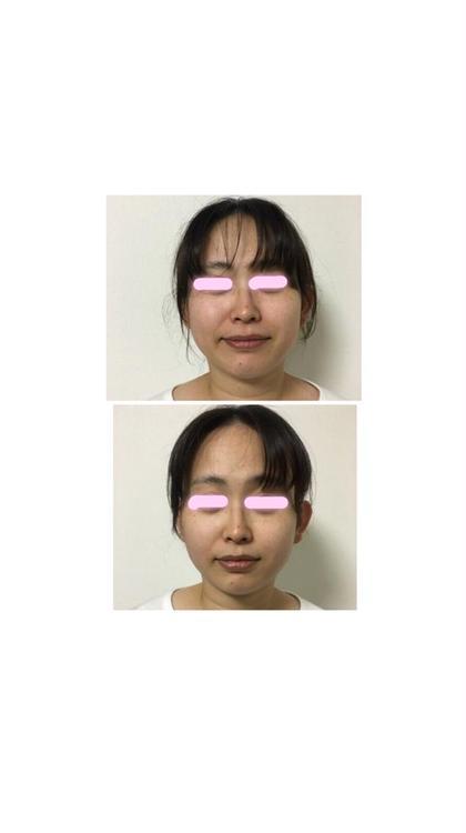整顔デコルテ🌸一回目のビフォーアフター☆ healing&beauty青い鳥所属・宇佐野桜子のフォト