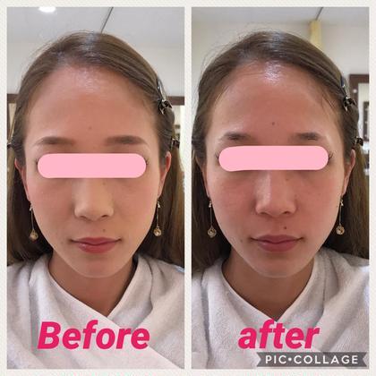 スキンケアだけなのに肌が白くなった ひと幹細胞入りの美容液ファンデーションは肌が呼吸してる感じで軽い✨なのにしっかりカバーしてくれます(*^^*)