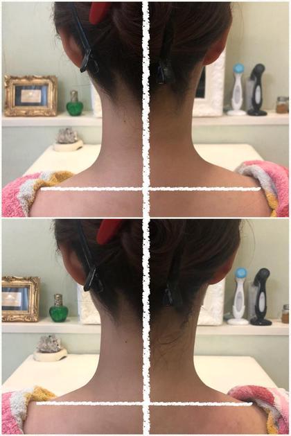 肩凝りで右肩が盛り上がり左右非対称だった状態から、 右側15分程の施術で右肩が下がり首ラインもスッキリ🌟  肩ボトックスをしなくても肩が下がります!