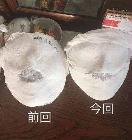 小顔コルギのお客様です♡ 石膏を見て頂いたらおわかりのように顔の輪郭がスッキリされました。 お顔のコルギは、たるみやむくみに効果的です。