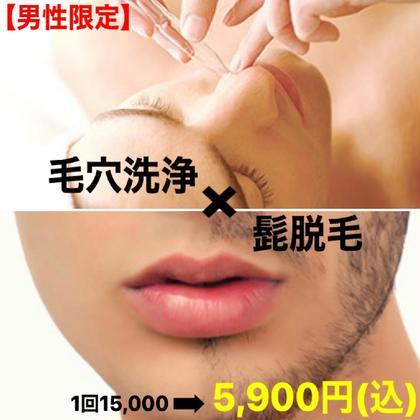 【ご新規様男性限定】全顔毛穴洗浄×髭脱毛(パック付)