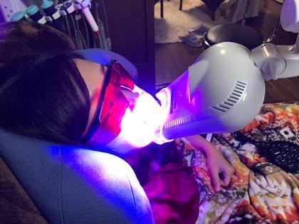【海外では当たり前✈️】歯のセルフホワイトニング美意識の高い人は歯も白い✨笑顔の時の汚れた歯が気になりませんか?