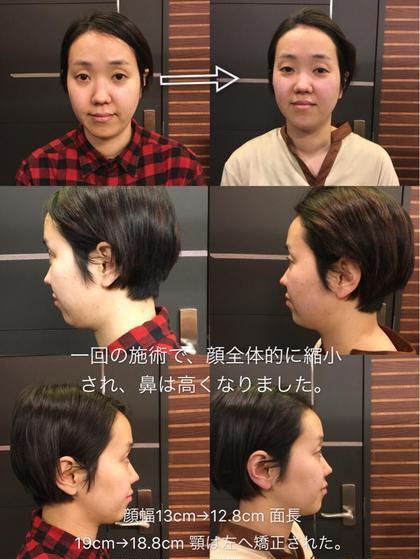 顔の歪みは顎関節から来たもので、右咀嚼筋を使えば、半年くらいバランス良くなると思います。後は骨盤の開きと腰椎の前弯が目立つ、月に1回程度骨盤矯正のコースを受けた方がいいと思います。 出山院長のショートのヘアスタイル