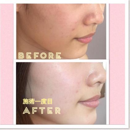 肌が綺麗な方でも酸化した老廃物は溜まります。  〈 施術後 〉  肌がクリアになりますのでまるでお肌がスポンジのようにお化粧水の入りがぜんぜん違います❗️  メイクのりはもちろん✨細胞を活性化させ、肌を内側から変えるので効果が継続  トラブル知らずの強い肌に✨