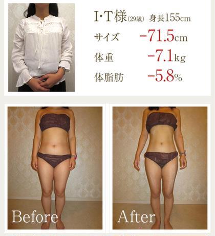 【10kg痩せたい方】ダイエット痩身!凸凹脂肪を撃退!全身+矯正
