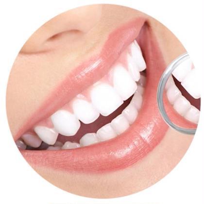 歯のホワイトニング〈学生応援⭐︎特別価格〉1回照射